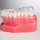 Niềng răng không mắc cài thẩm mỹ D-Aligner
